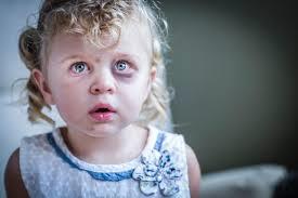 کودکآزاری و غفلت از کودکان: انواع، علائم و نشانهها